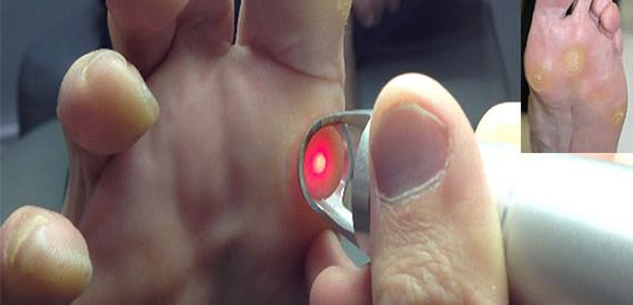 callos-pies-laser
