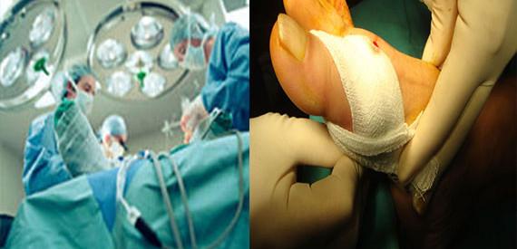cirugia-juanete