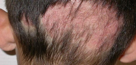 hongos-cuero-cabelludo-biolaser-cusco