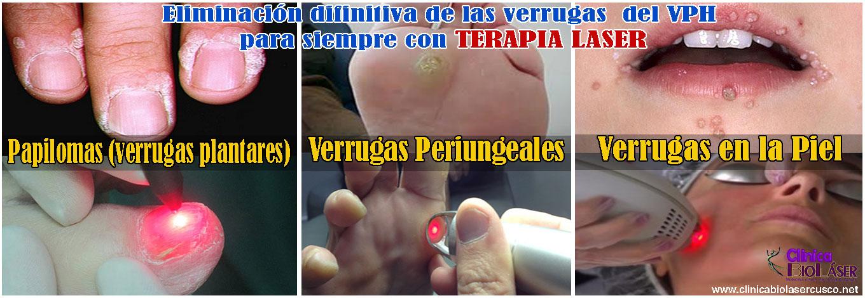 verrugas-papilomas-verrugas periungeales