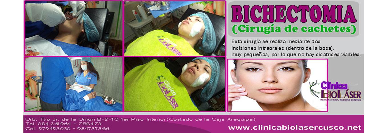 bichectomia-cusco-peru