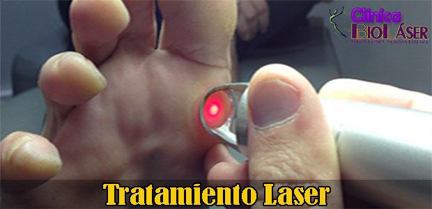 verrugas-periungeales-laser