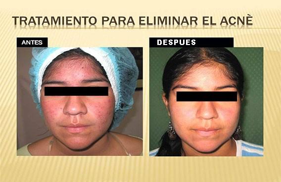 tratamiento-acne-cusco