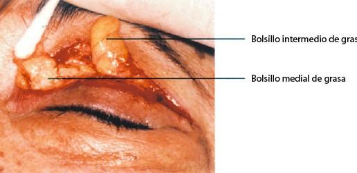 blefaroplastia-cusco