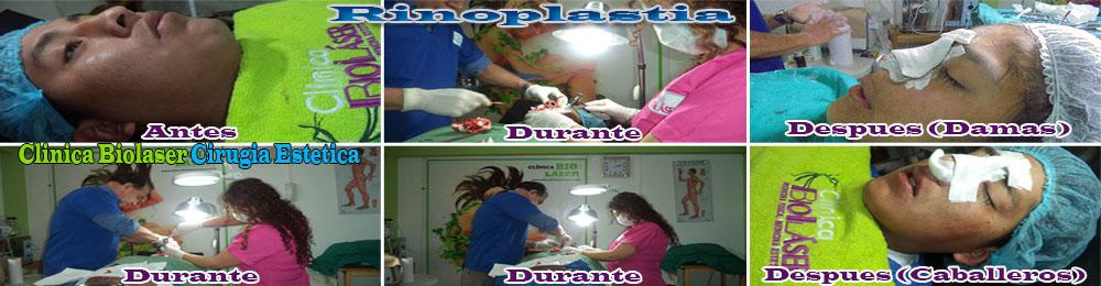 tratamiento-rinoplastia-cusco
