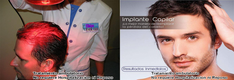 tratamiento-implante-capilar-cusco