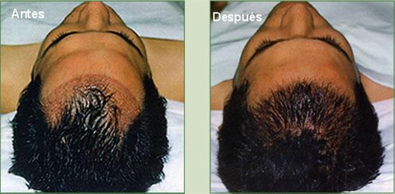 implante-capilar-cusco