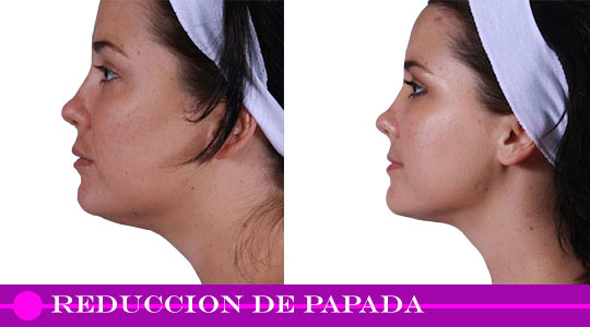reduccion-de-papada-clinica-biolaser-cusco