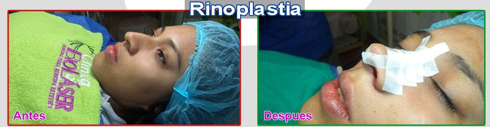 rinoplastia-cusco