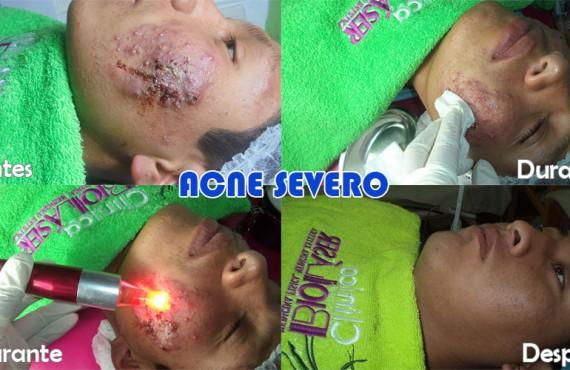 acne-severo-clinica-biolaser-cusco