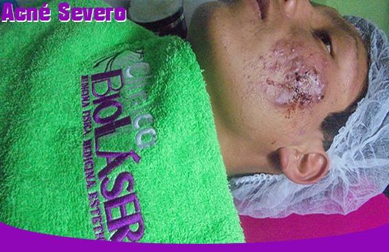 acne-severo-cusco