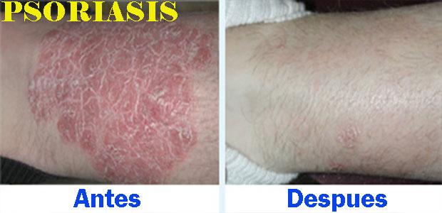 clinica-biolaser-cusco-psoriosis