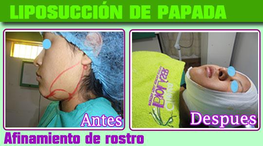 liposuccion-papada-afinamiento de rostro-clinica-biolaser-cusco